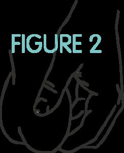 Figure2.